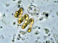 Cyanobacterie Anabaena spiroides